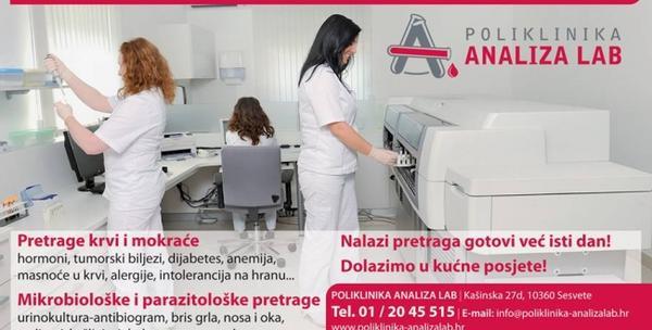 Kompletan sistematski pregled krvi i urina - slika 7