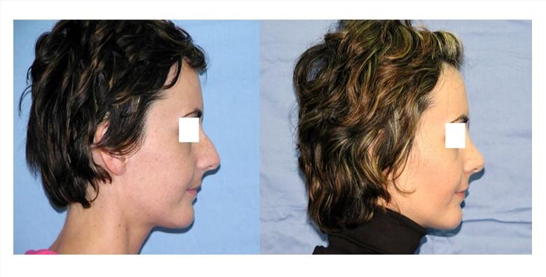 Operacija nosa u Poliklinici Arcadia - slika 4