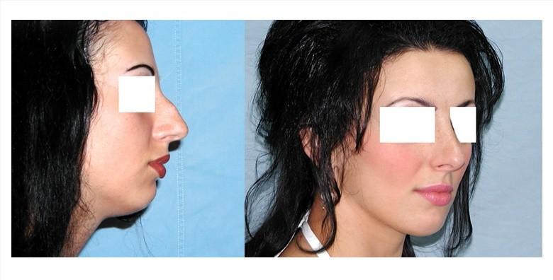 Operacija nosa u Poliklinici Arcadia - slika 5