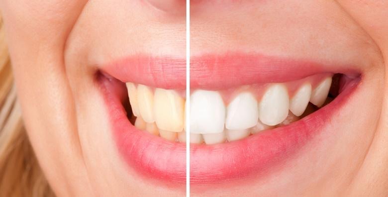 Izbjeljivanje zubi  s LED svjetlima