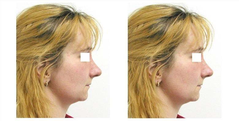 Operacija nosa u Poliklinici Arcadia - slika 2