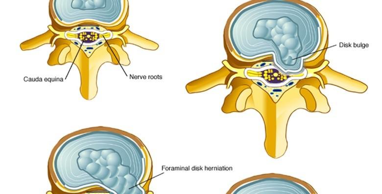 Kiropraktički tretman, pregled, konzultacije - slika 4