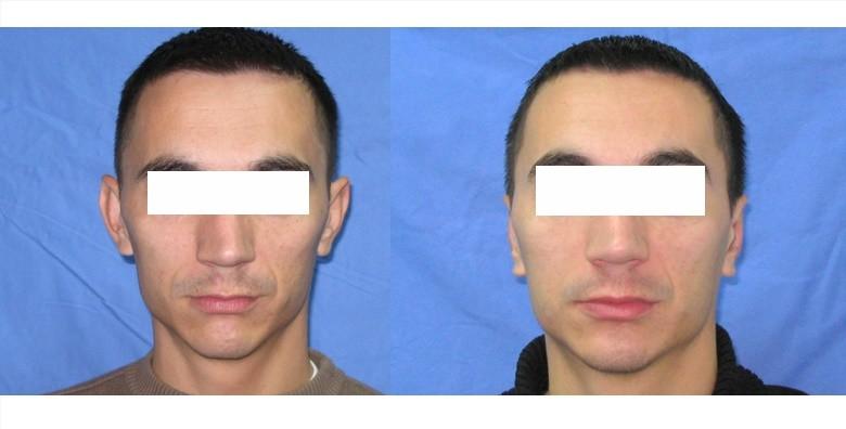 Estetska korekcija ušiju - slika 2
