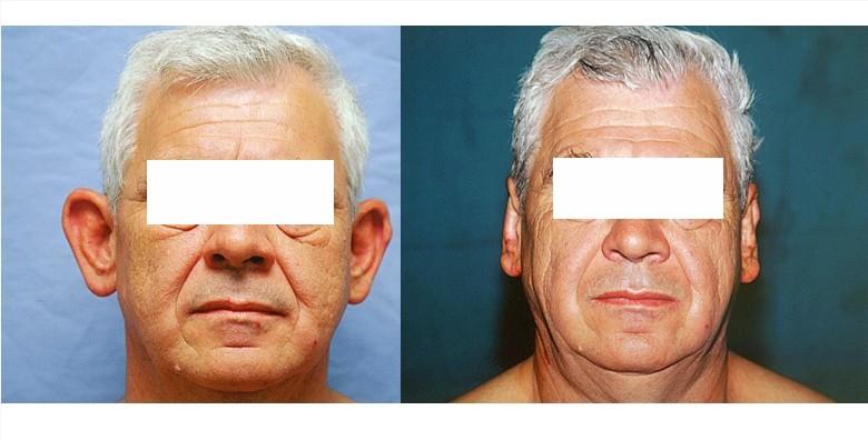 Estetska korekcija ušiju - slika 3
