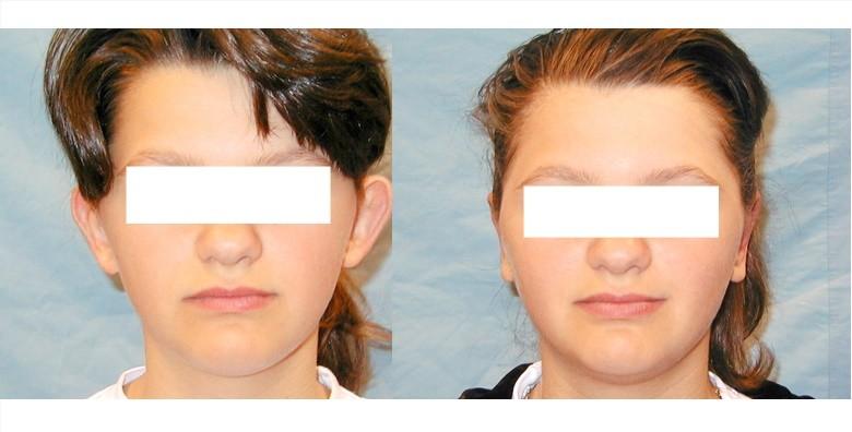 Estetska korekcija ušiju - slika 4