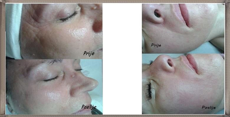 Mikrodermoabrazija, radiofrekvencija lica, masaža i maska - slika 3