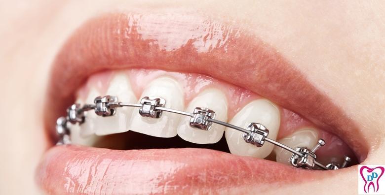 Aparatić za zube - estetski ili konvencionalni