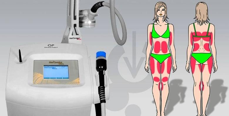 Med2Contour dualni ultrazvuk - 1 tretman - slika 5