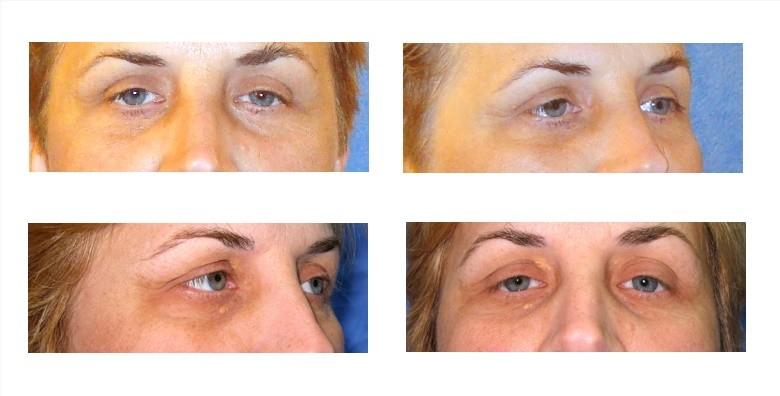 Korekcija vjeđa na oba oka - slika 2