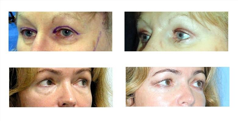 Korekcija vjeđa na oba oka - slika 3