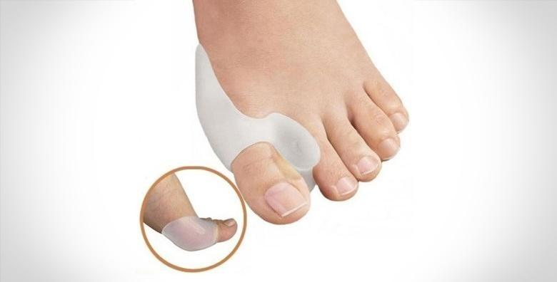 Riješite se čukljeva - anatomski štitnici za palčeve uz uključenu dostavu za 99 kn!