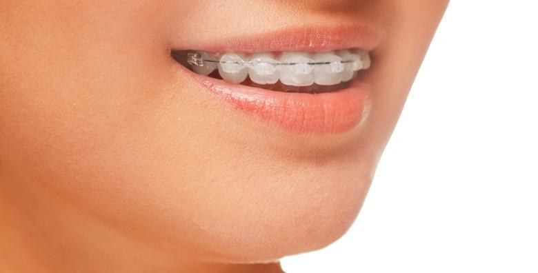 Aparatić za zube - konvencionalni ili samoligirajući