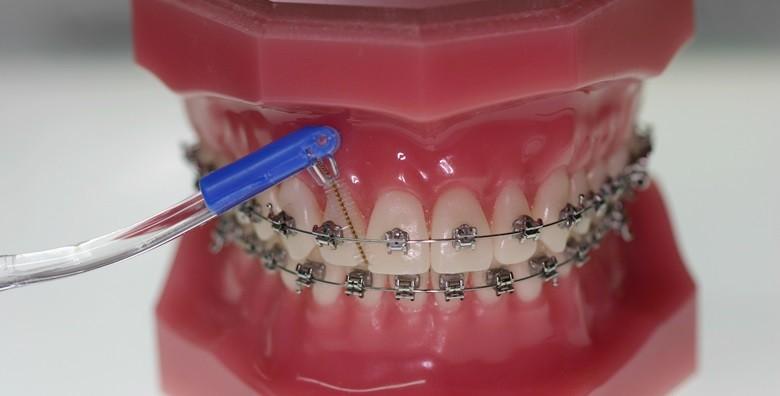 Aparatić za zube - konvencionalni ili samoligirajući - slika 3