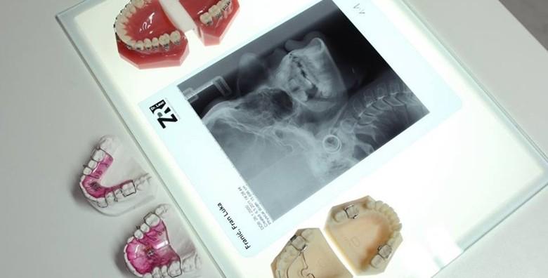 Aparatić za zube - konvencionalni ili samoligirajući - slika 9