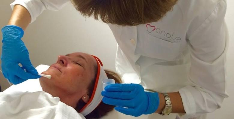 Medicinsko čišćenje lica u Poliklinici Manola - slika 4