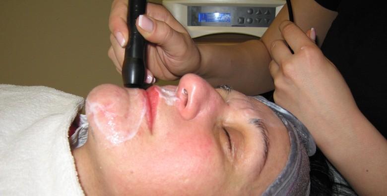 3 radiofrekvencije lica - tretman protiv bora i ožiljaka - slika 2