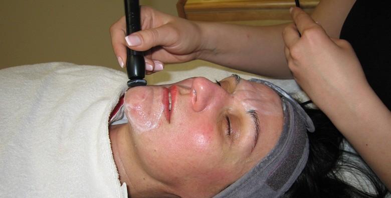 3 radiofrekvencije lica - tretman protiv bora i ožiljaka - slika 5