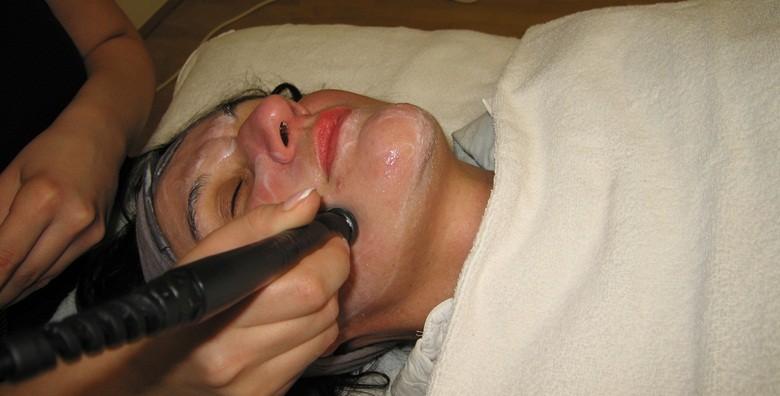 3 radiofrekvencije lica - tretman protiv bora i ožiljaka - slika 6