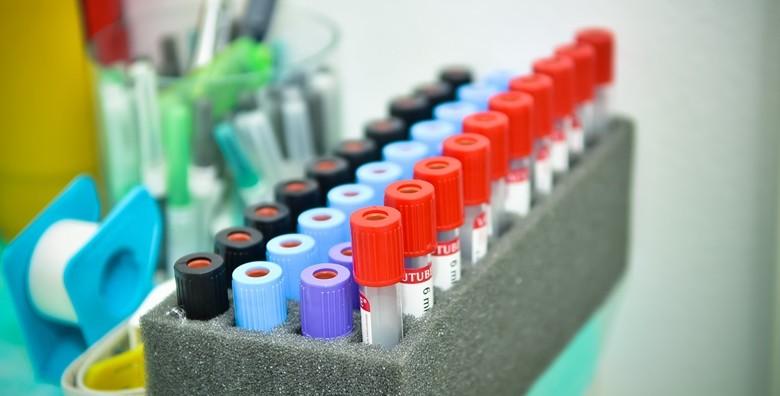 Alergološko testiranje putem krvi - slika 2
