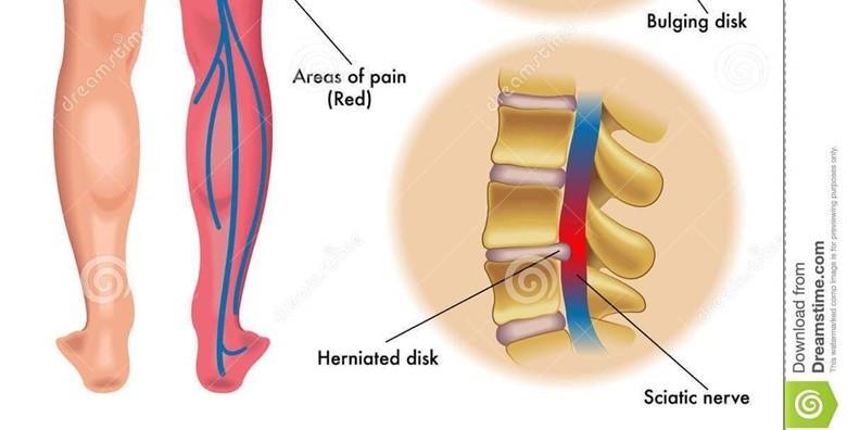 Kiropraktički tretman - pregled, masaža i elektroterapija - slika 2