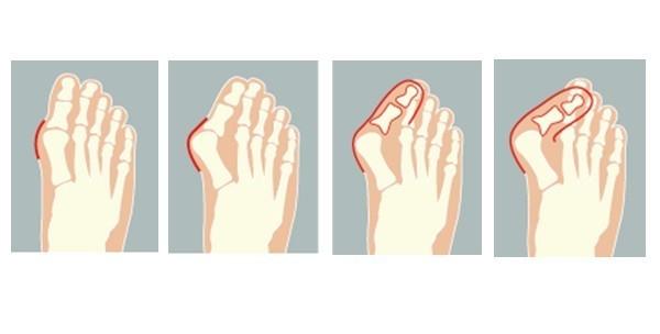 2 anatomska štitnika za palčeve - slika 2