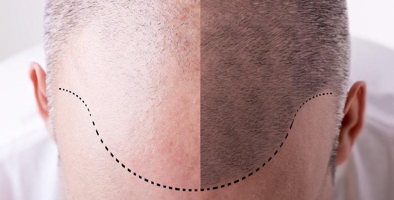 Riješite problem ćelavosti, prorijeđene kose, ožiljaka i alopecije mikropigmentacijom uz 4 uključene korekcije za 1.499 kn!