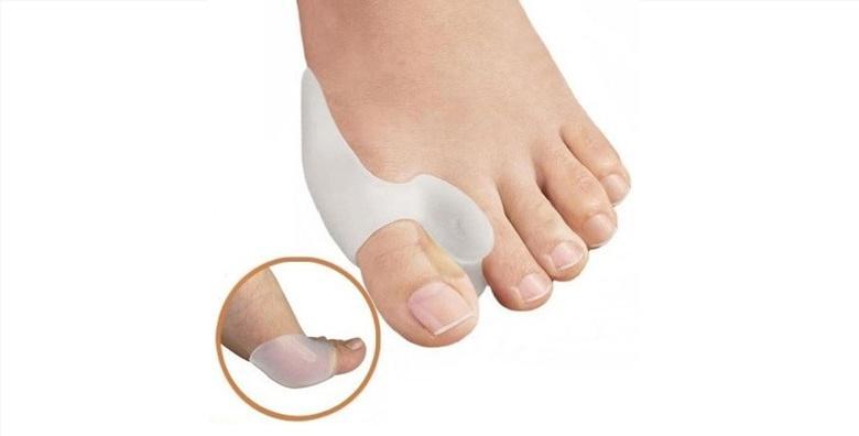 2 štitnika za deformirane palčeve - hallux valgus (čukalj)