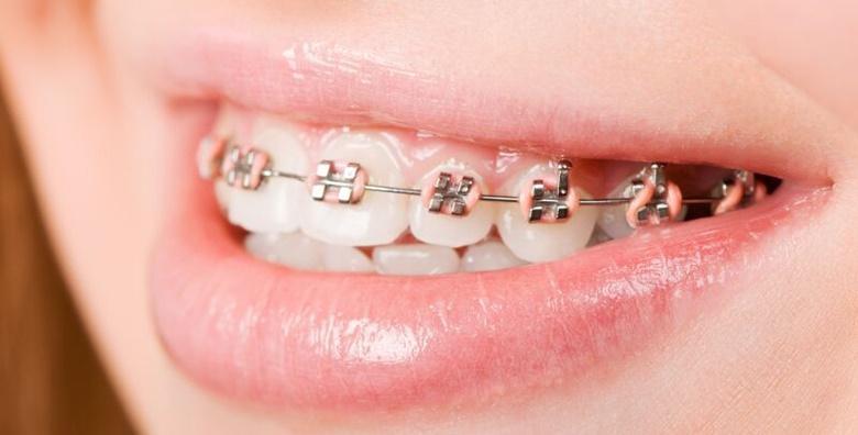 Aparatić za zube i svi pregledi - samoligirajući metalni za 1 čeljust uz uključene retencije za 4.250 kn!