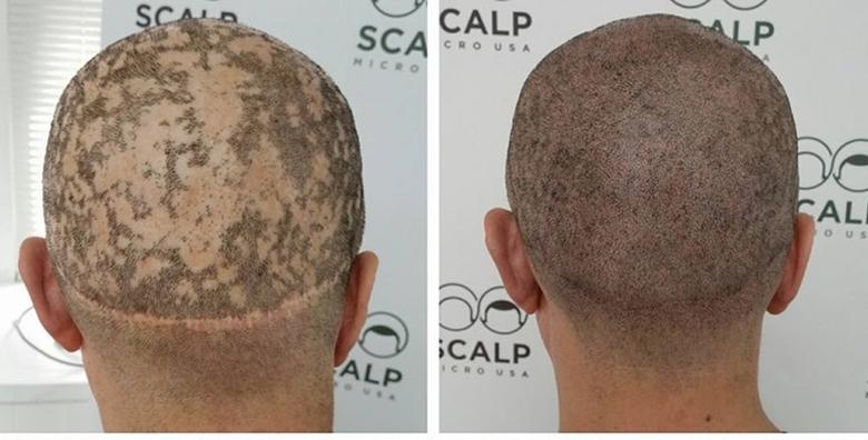 Riješite problem prorijeđene kose, ćelavosti, alopecije medicinskom mikropigmentacijom za 999 kn!