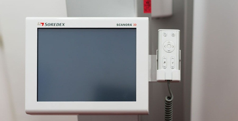 Digitalni ortopan  - odmah gotov snimak ili kraniogram - slika 3