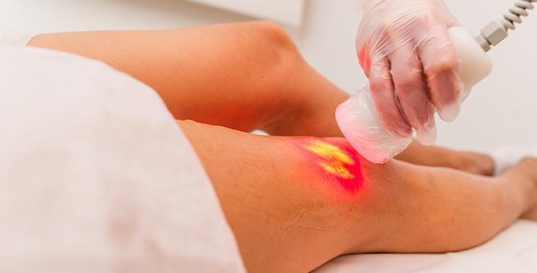 Body Contoure - 30 tretmana mršavljenja - slika 2