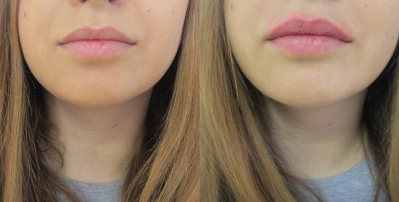 Hijaluronski fileri 0.5 ml- popunite usne ili izgladite bore - slika 2