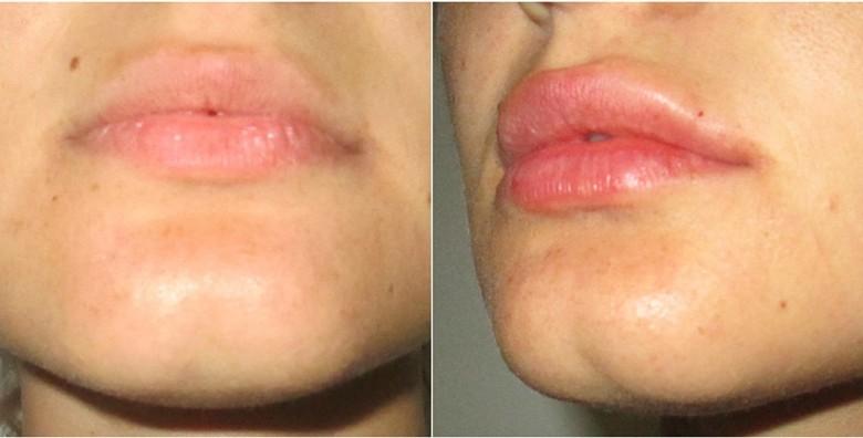 Hijaluronski fileri 0.5 ml- popunite usne ili izgladite bore - slika 4