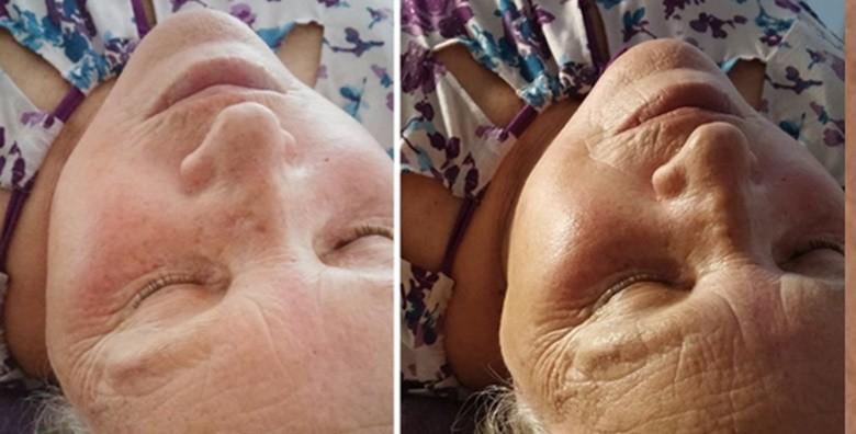 Mikrodermoabrazija, ultrazvučna špatula, serum i maska - slika 2
