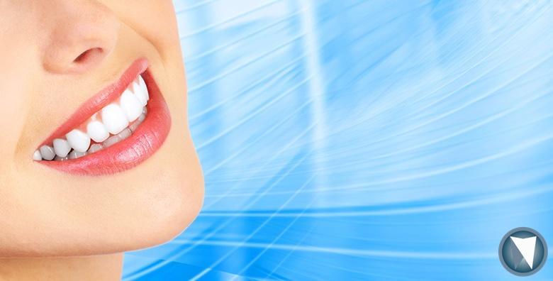 Čišćenje zubnog kamenca, pjeskarenje, poliranje, pregled i premaz zuba Tooth Mousse gelom ili fluoridacija za 99 kn!