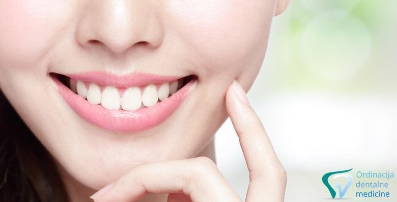 Ultrazvučno čišćenje zubnog kamenca, poliranje i pregled - spriječite nastanak karijesa te osigurajte blistav osmijeh za 99 kn!