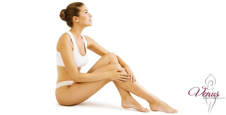 56 tretmana trajnog uklanjanja dlačica s cijelog tijela