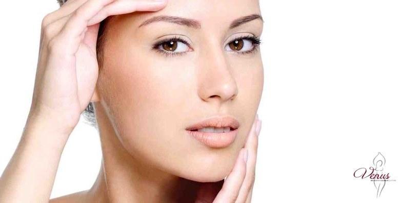 Uklanjanje kapilara s lica - 1 tretman