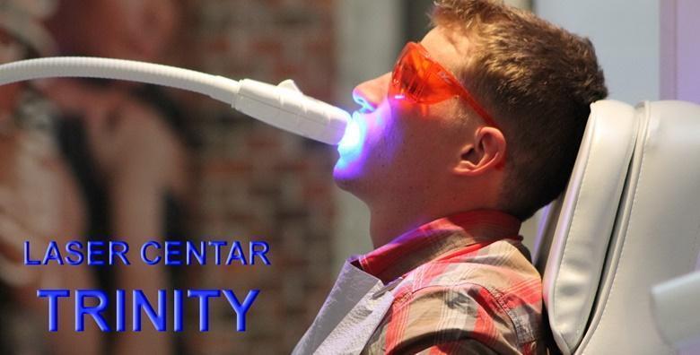 Izbjeljivanje zubi uz primjenu Brite Smile lampe i gela