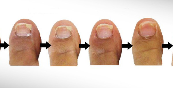 Lasersko uklanjanje gljivica na noktima za 175kn! - slika 6