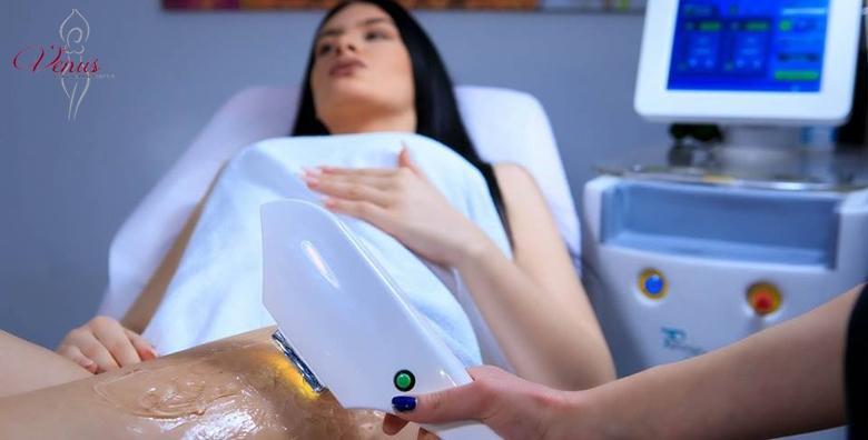 SHR trajno uklanjanje dlačica - 1 tretman
