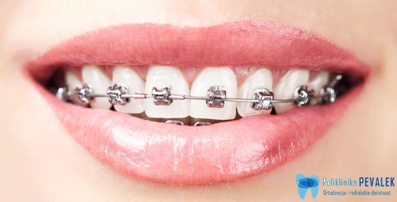 Aparatić za zube i svi pregledi - samoligirajući ili konvencionalni metalni za 1 čeljust u Stomatološkoj poliklinici Pevalek od 4.250 kn!