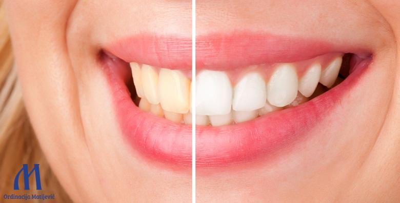 Izbjeljivanje zubi Opalescence PF tehnologijom
