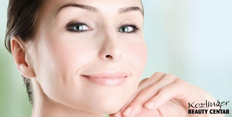 Uklanjanje kapilara s lica