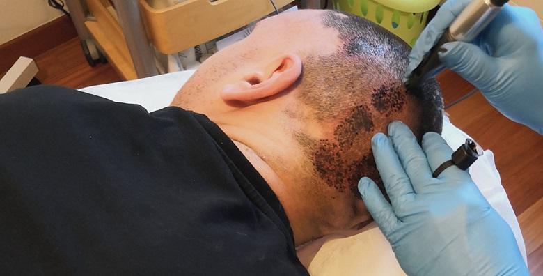 Mikropigmentacija vlasišta - tretman kod prorijeđene kose