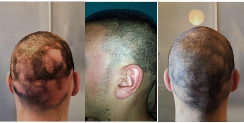 Mikropigmentacija vlasišta - tretman kod ćelavosti
