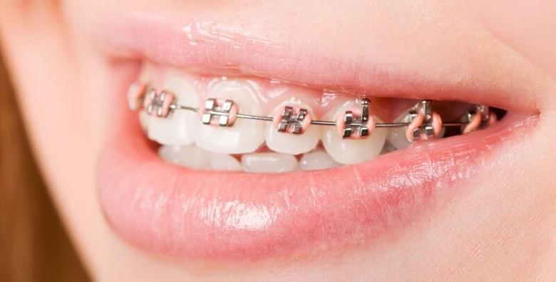 Fiksni ortodontski aparatić za jednu čeljust
