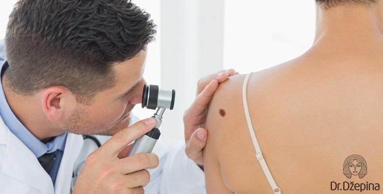 Uklanjanje madeža uz uključen dermatoskopski pregled cijelog tijela za 499 kn!