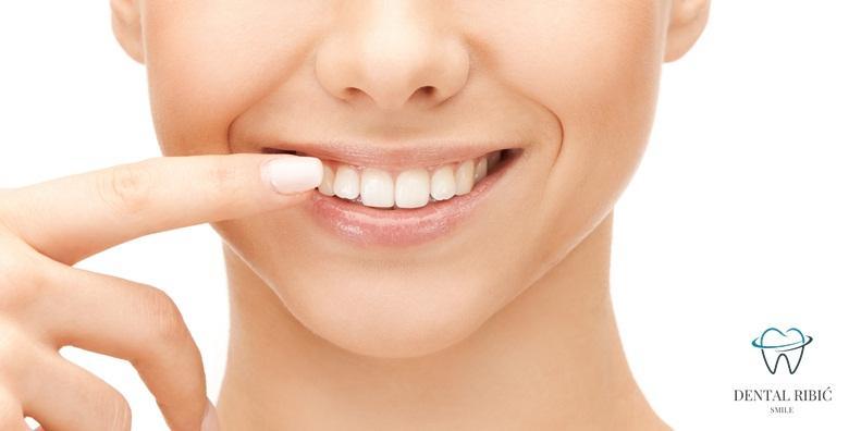 Plomba, čišćenje zubnog kamenca, poliranje i pregled za 199 kn!