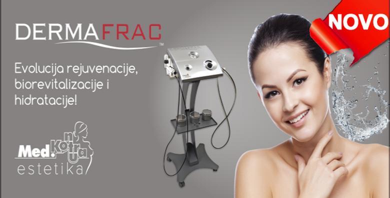 DermaFrac - personalizirani tretman pomlađivanja uz konzultacije za 1.299 kn!